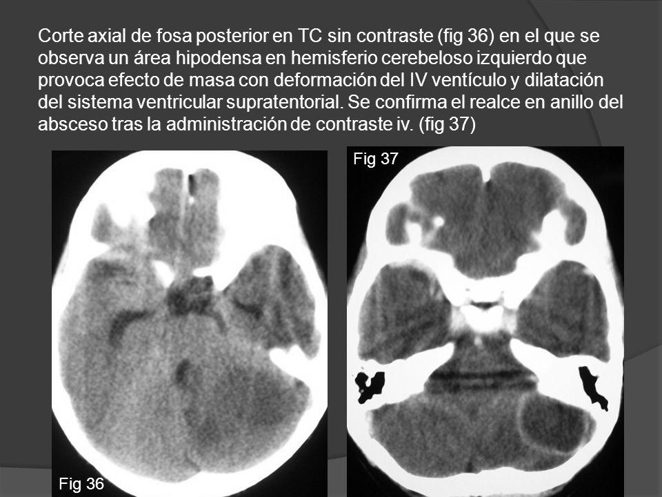 Corte axial de fosa posterior en TC sin contraste (fig 36) en el que se observa un área hipodensa en hemisferio cerebeloso izquierdo que provoca efecto de masa con deformación del IV ventículo y dilatación del sistema ventricular supratentorial. Se confirma el realce en anillo del absceso tras la administración de contraste iv. (fig 37)