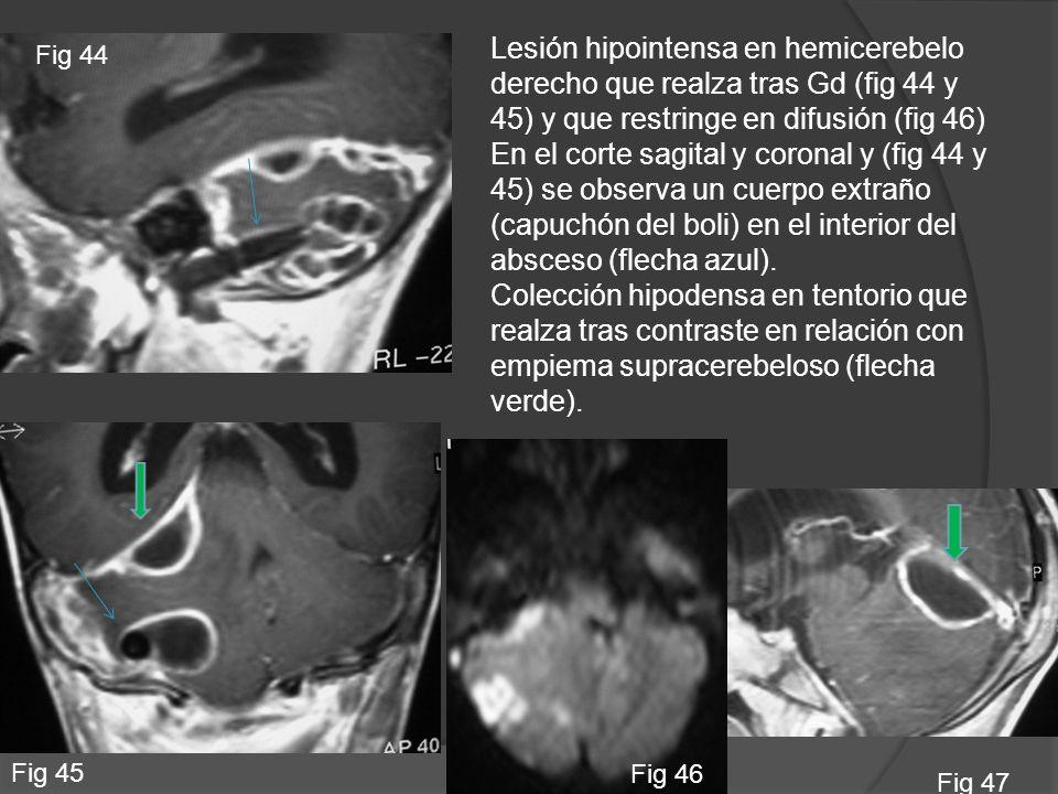 Lesión hipointensa en hemicerebelo derecho que realza tras Gd (fig 44 y 45) y que restringe en difusión (fig 46)