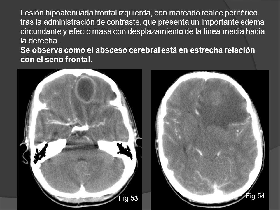 Lesión hipoatenuada frontal izquierda, con marcado realce periférico tras la administración de contraste, que presenta un importante edema circundante y efecto masa con desplazamiento de la línea media hacia la derecha.