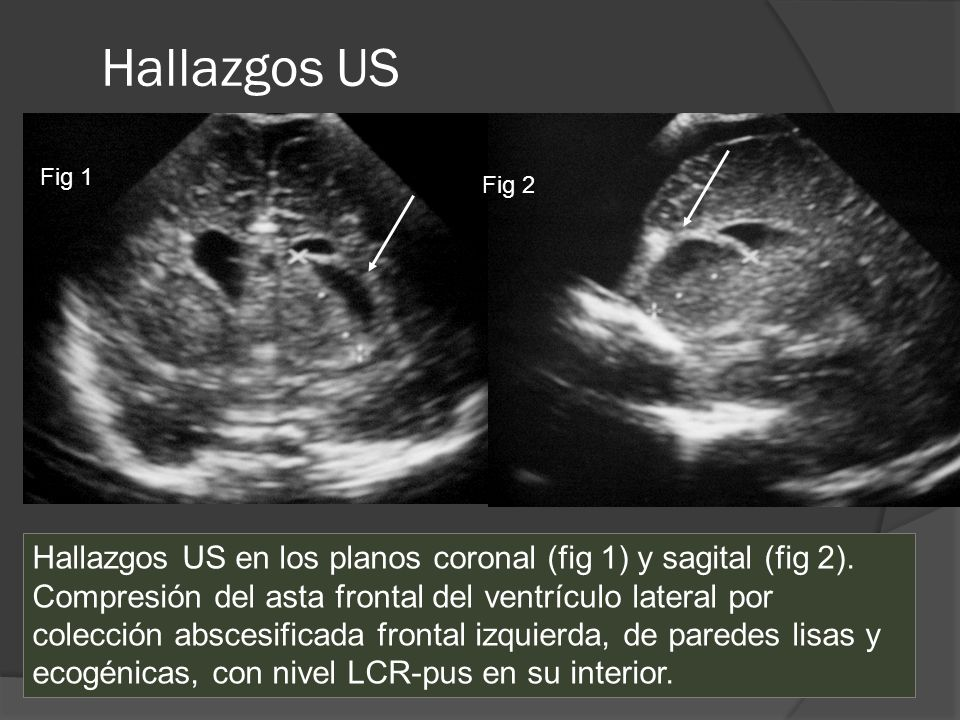 Hallazgos US Fig 1. Fig 2. Hallazgos US en los planos coronal (fig 1) y sagital (fig 2).