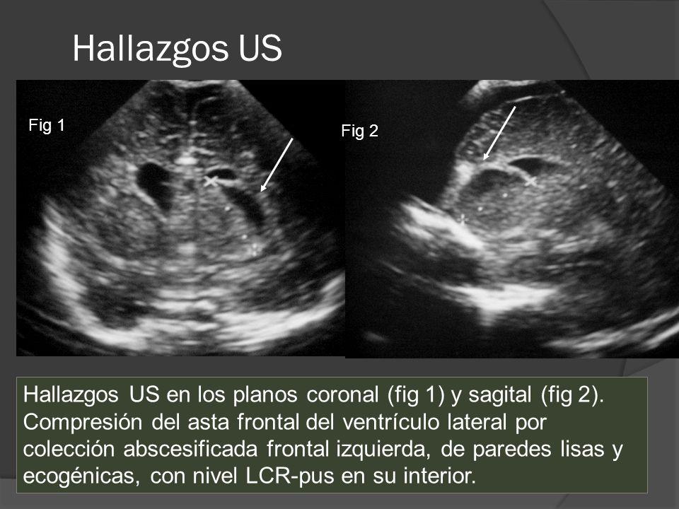 Hallazgos USFig 1. Fig 2. Hallazgos US en los planos coronal (fig 1) y sagital (fig 2).
