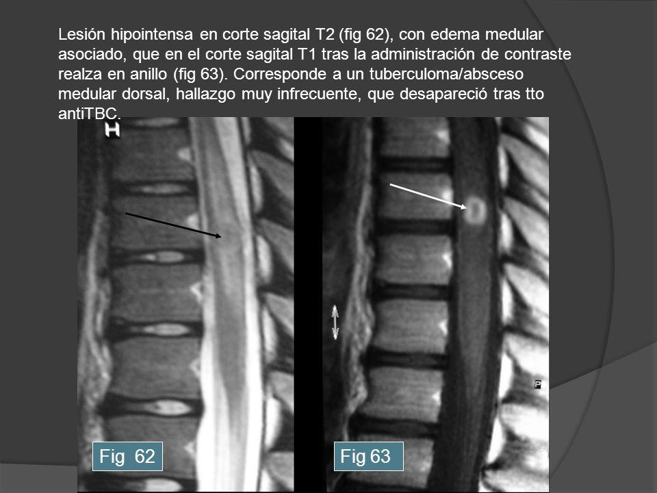 Lesión hipointensa en corte sagital T2 (fig 62), con edema medular asociado, que en el corte sagital T1 tras la administración de contraste realza en anillo (fig 63). Corresponde a un tuberculoma/absceso medular dorsal, hallazgo muy infrecuente, que desapareció tras tto antiTBC.