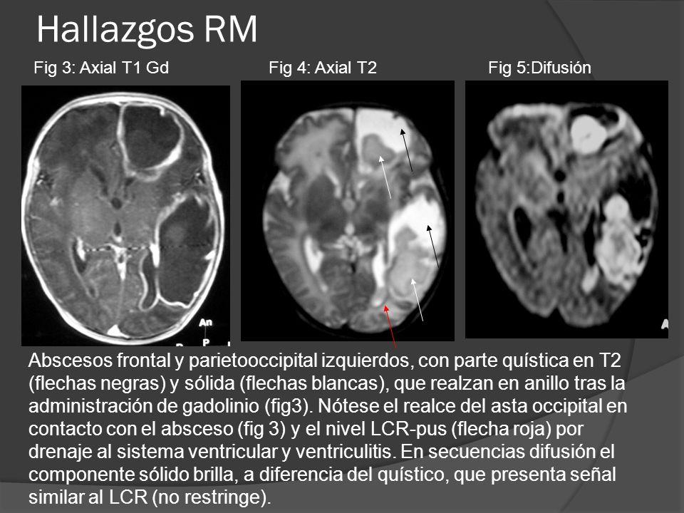 Hallazgos RMFig 3: Axial T1 Gd. Fig 4: Axial T2. Fig 5:Difusión.