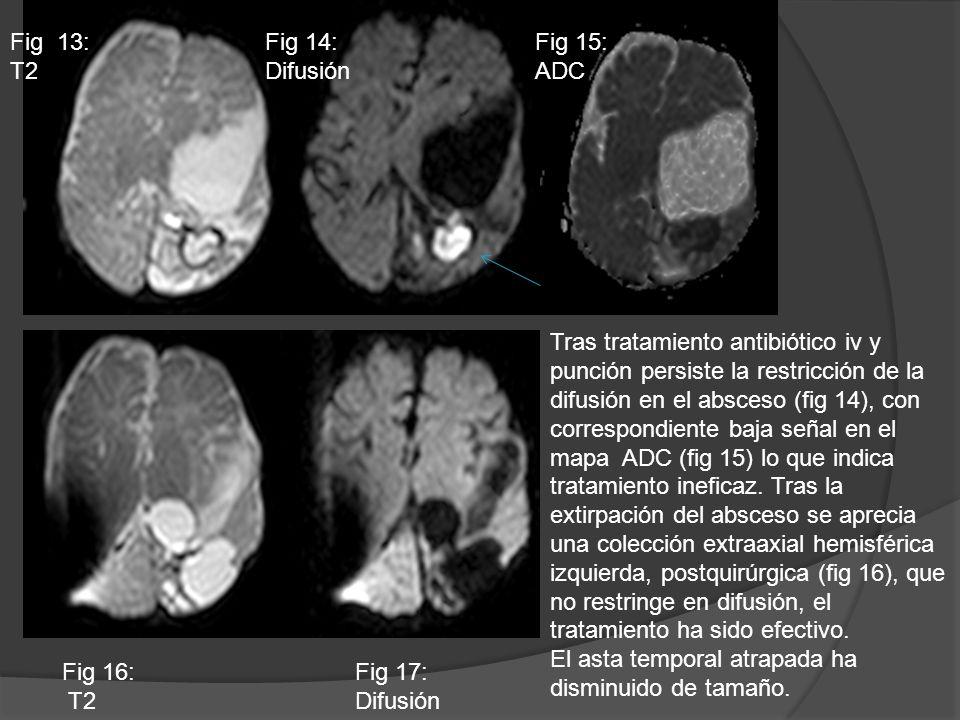 Fig 13: T2Fig 14: Difusión. Fig 15: ADC.