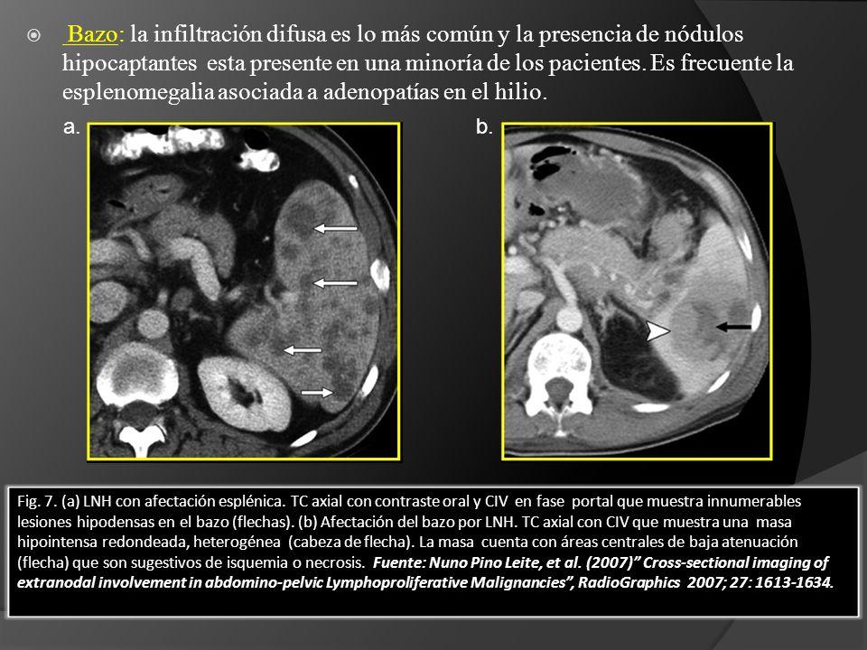Bazo: la infiltración difusa es lo más común y la presencia de nódulos hipocaptantes esta presente en una minoría de los pacientes. Es frecuente la esplenomegalia asociada a adenopatías en el hilio.