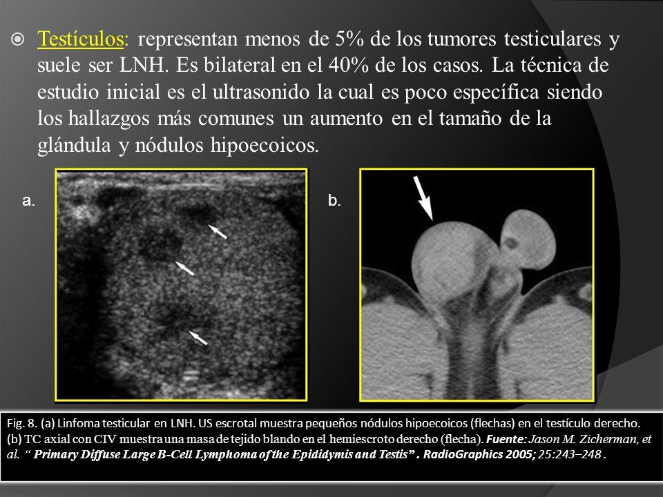 Testículos: representan menos de 5% de los tumores testiculares y suele ser LNH. Es bilateral en el 40% de los casos. La técnica de estudio inicial es el ultrasonido la cual es poco específica siendo los hallazgos más comunes un aumento en el tamaño de la glándula y nódulos hipoecoicos.