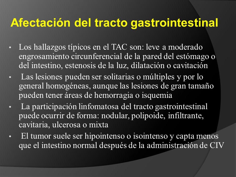 Afectación del tracto gastrointestinal
