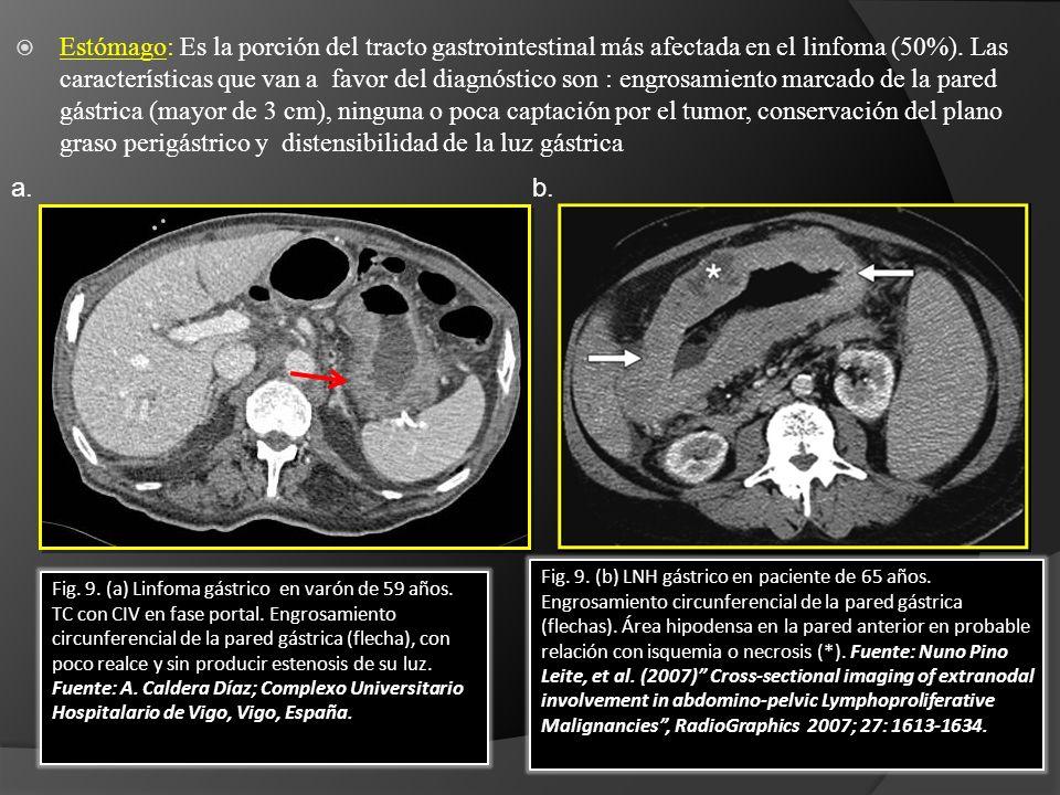 Estómago: Es la porción del tracto gastrointestinal más afectada en el linfoma (50%). Las características que van a favor del diagnóstico son : engrosamiento marcado de la pared gástrica (mayor de 3 cm), ninguna o poca captación por el tumor, conservación del plano graso perigástrico y distensibilidad de la luz gástrica