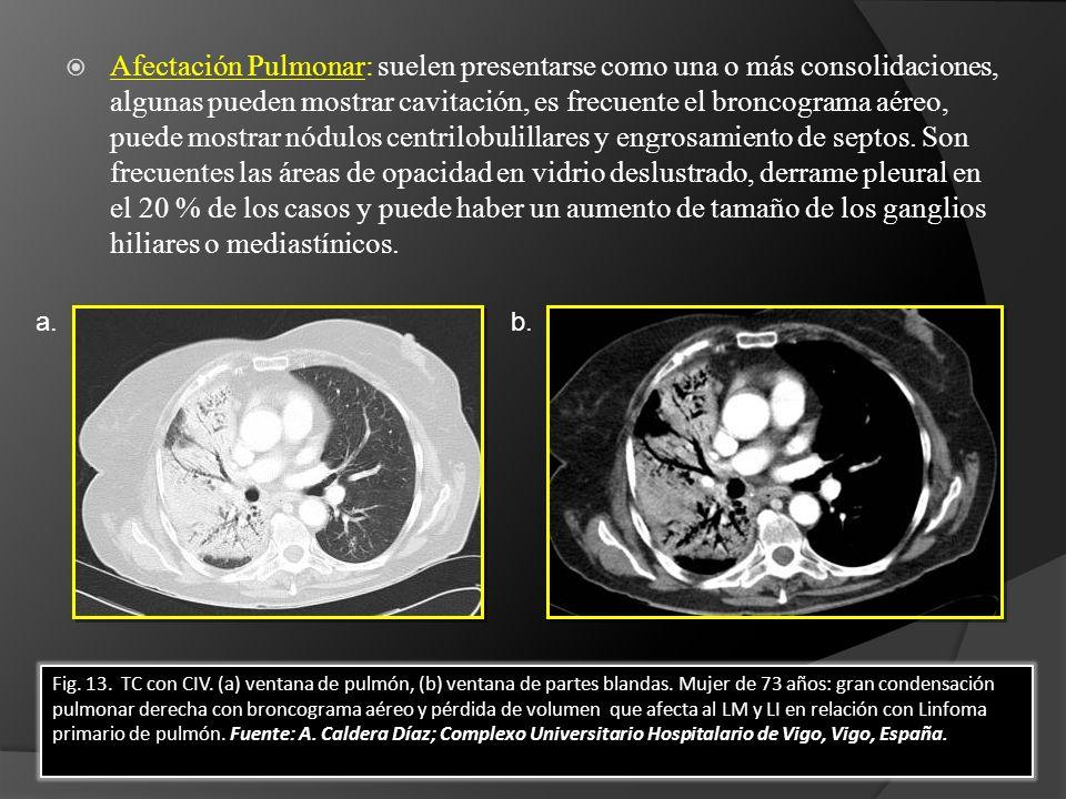 Afectación Pulmonar: suelen presentarse como una o más consolidaciones, algunas pueden mostrar cavitación, es frecuente el broncograma aéreo, puede mostrar nódulos centrilobulillares y engrosamiento de septos. Son frecuentes las áreas de opacidad en vidrio deslustrado, derrame pleural en el 20 % de los casos y puede haber un aumento de tamaño de los ganglios hiliares o mediastínicos.