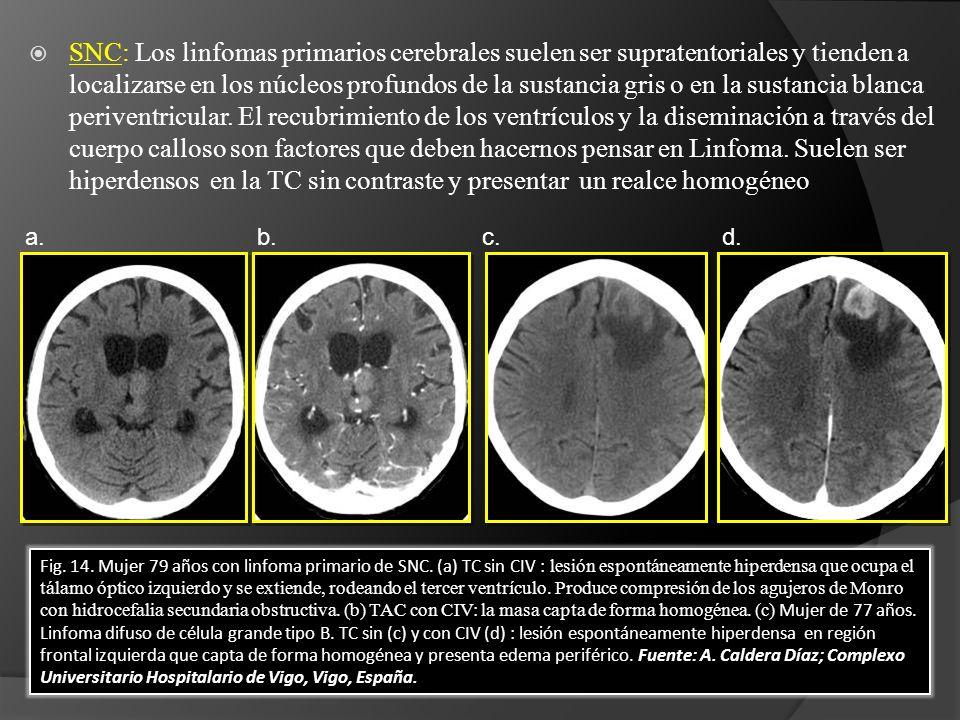 SNC: Los linfomas primarios cerebrales suelen ser supratentoriales y tienden a localizarse en los núcleos profundos de la sustancia gris o en la sustancia blanca periventricular. El recubrimiento de los ventrículos y la diseminación a través del cuerpo calloso son factores que deben hacernos pensar en Linfoma. Suelen ser hiperdensos en la TC sin contraste y presentar un realce homogéneo