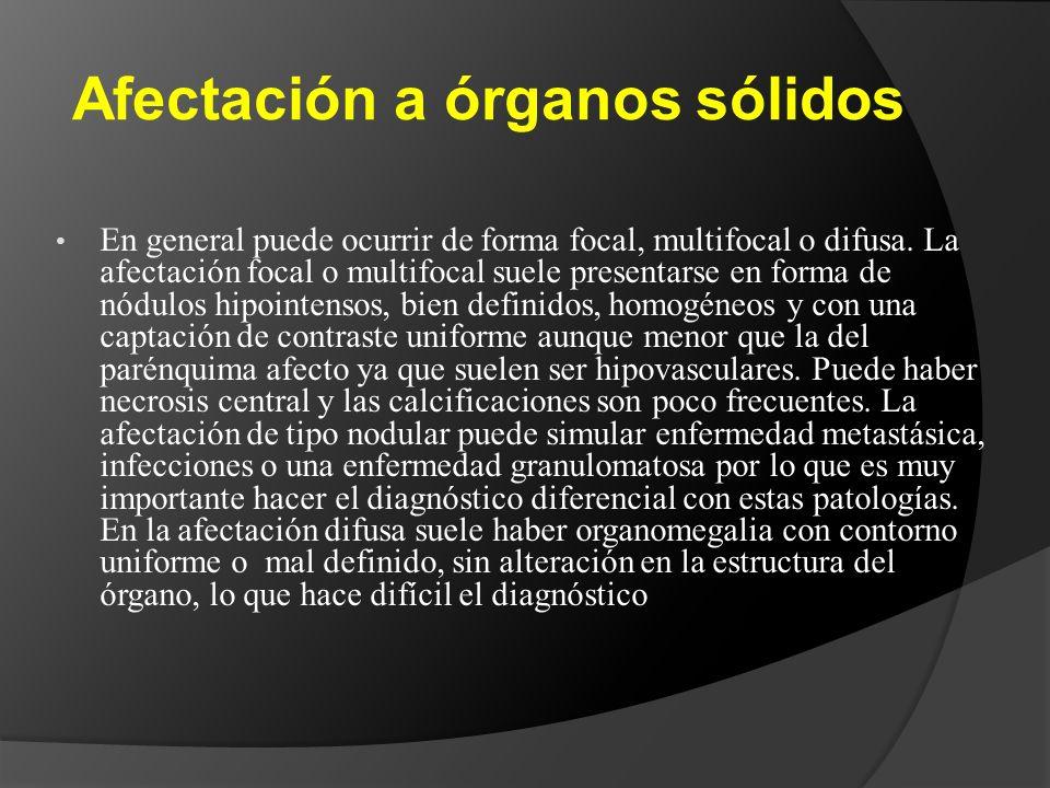 Afectación a órganos sólidos