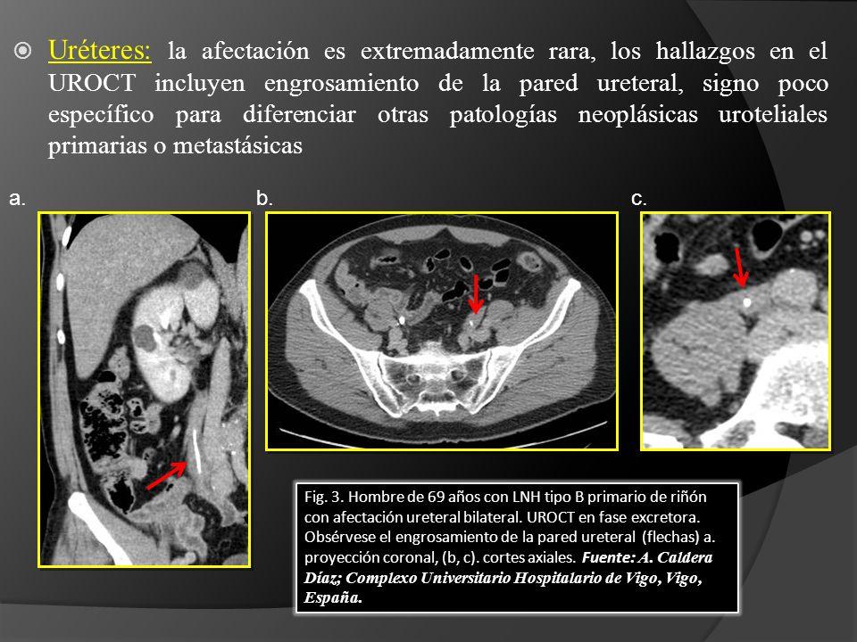 Uréteres: la afectación es extremadamente rara, los hallazgos en el UROCT incluyen engrosamiento de la pared ureteral, signo poco específico para diferenciar otras patologías neoplásicas uroteliales primarias o metastásicas