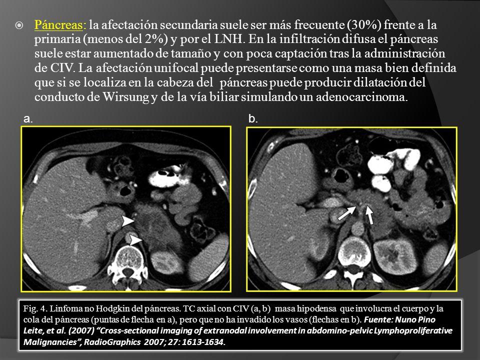 Páncreas: la afectación secundaria suele ser más frecuente (30%) frente a la primaria (menos del 2%) y por el LNH. En la infiltración difusa el páncreas suele estar aumentado de tamaño y con poca captación tras la administración de CIV. La afectación unifocal puede presentarse como una masa bien definida que si se localiza en la cabeza del páncreas puede producir dilatación del conducto de Wirsung y de la vía biliar simulando un adenocarcinoma.