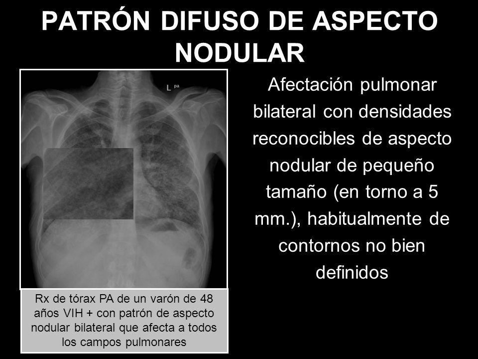 PATRÓN DIFUSO DE ASPECTO NODULAR