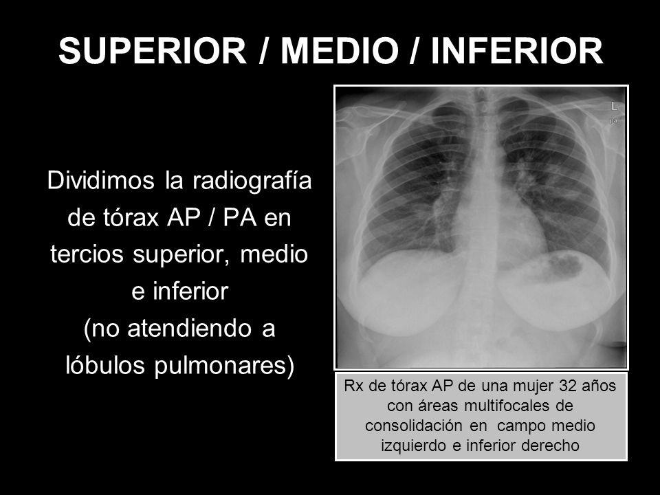 SUPERIOR / MEDIO / INFERIOR