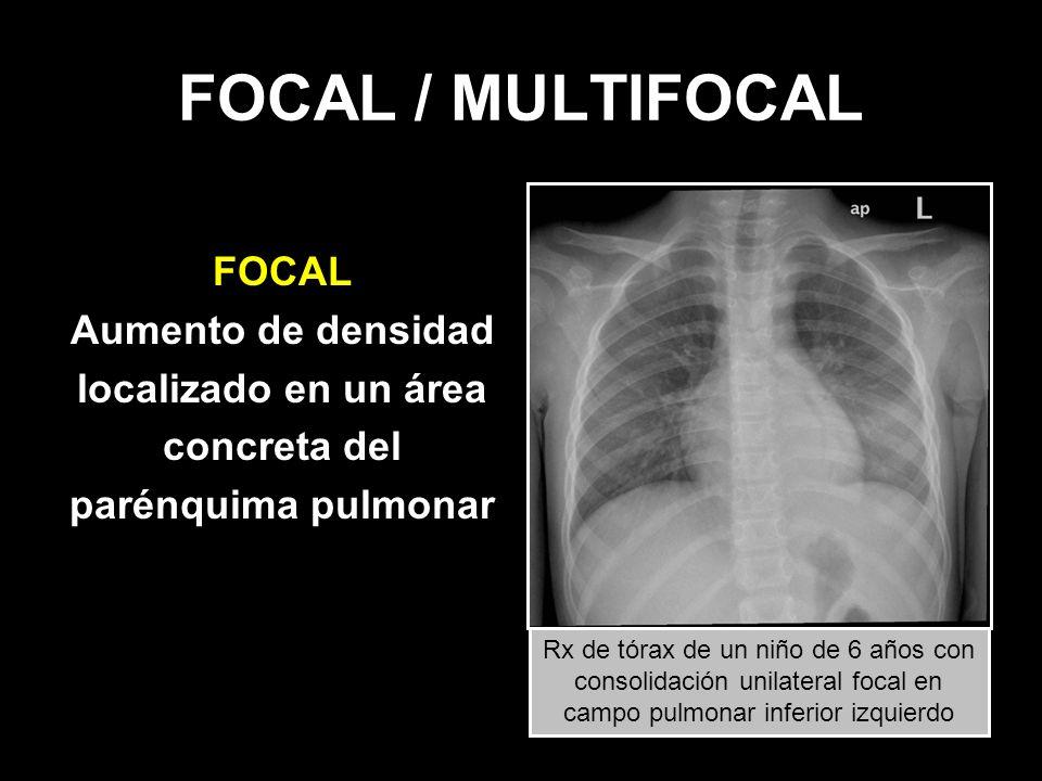 FOCAL / MULTIFOCAL FOCAL Aumento de densidad localizado en un área