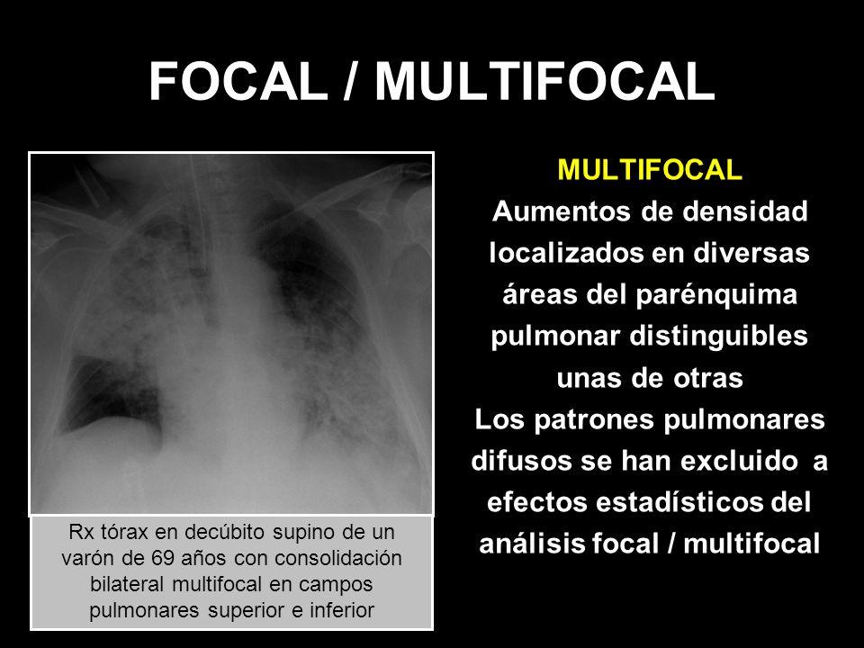 FOCAL / MULTIFOCAL MULTIFOCAL Aumentos de densidad