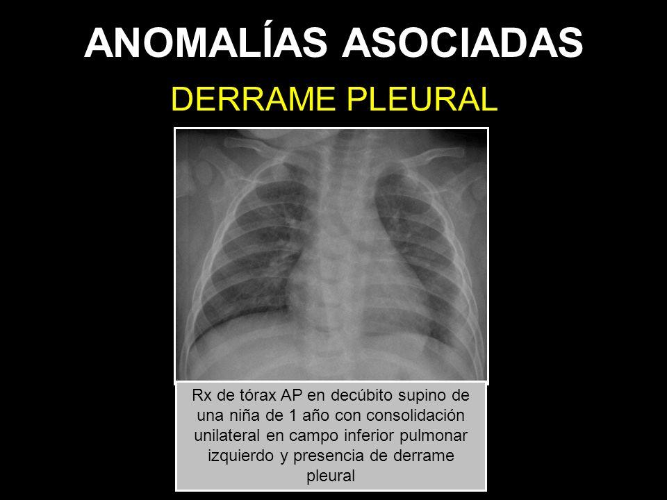 ANOMALÍAS ASOCIADAS DERRAME PLEURAL