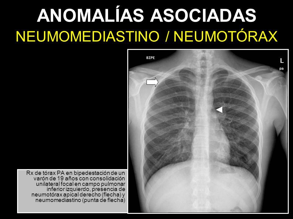 NEUMOMEDIASTINO / NEUMOTÓRAX