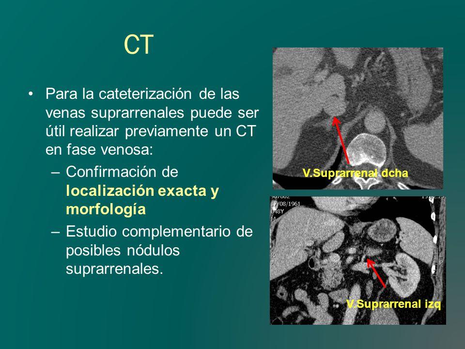 CTPara la cateterización de las venas suprarrenales puede ser útil realizar previamente un CT en fase venosa:
