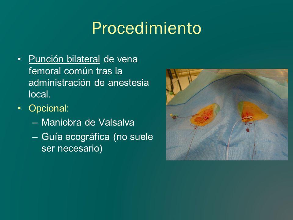 Procedimiento Punción bilateral de vena femoral común tras la administración de anestesia local. Opcional: