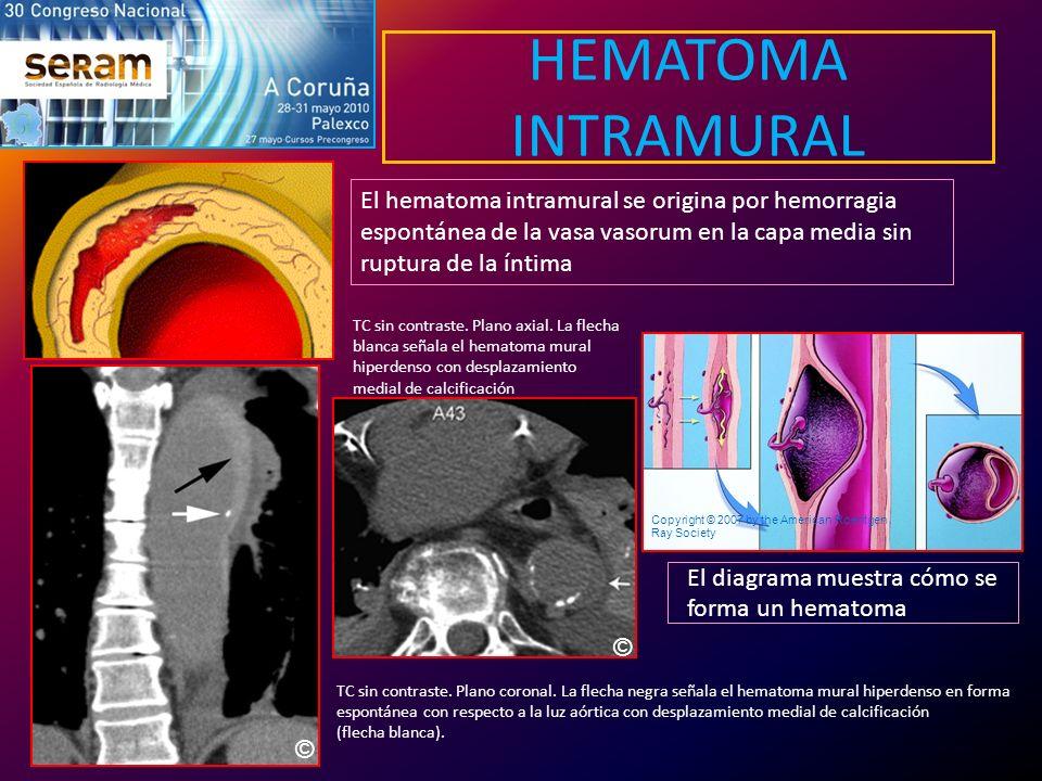 HEMATOMA INTRAMURAL El hematoma intramural se origina por hemorragia espontánea de la vasa vasorum en la capa media sin ruptura de la íntima.