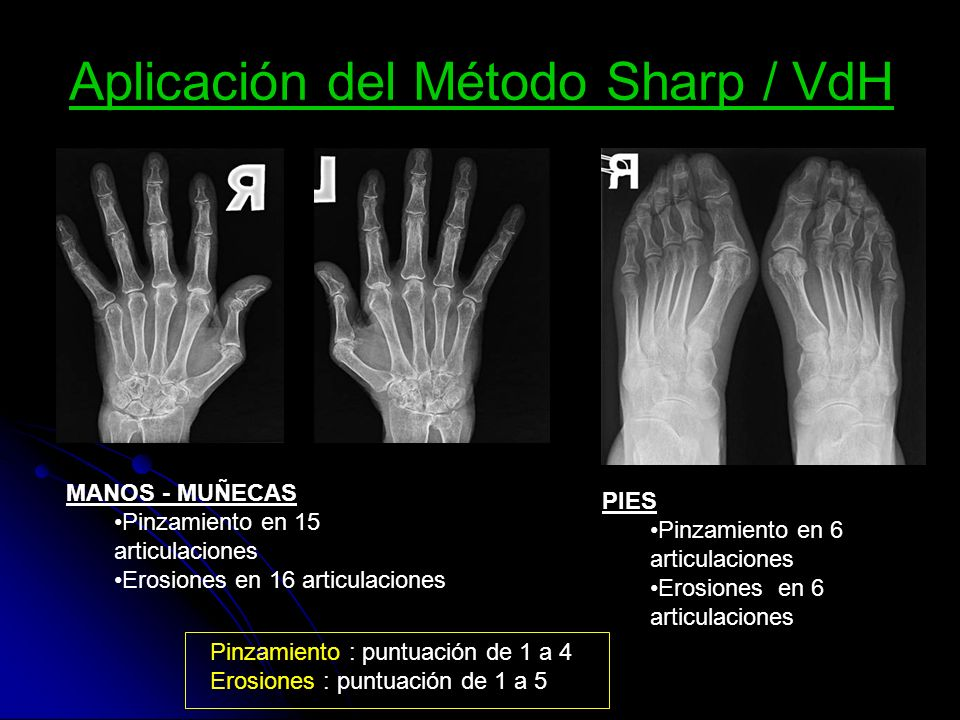 Aplicación del Método Sharp / VdH