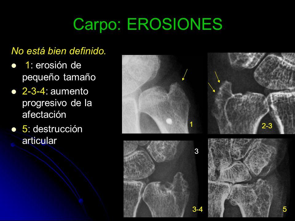 Carpo: EROSIONES No está bien definido. 1: erosión de pequeño tamaño
