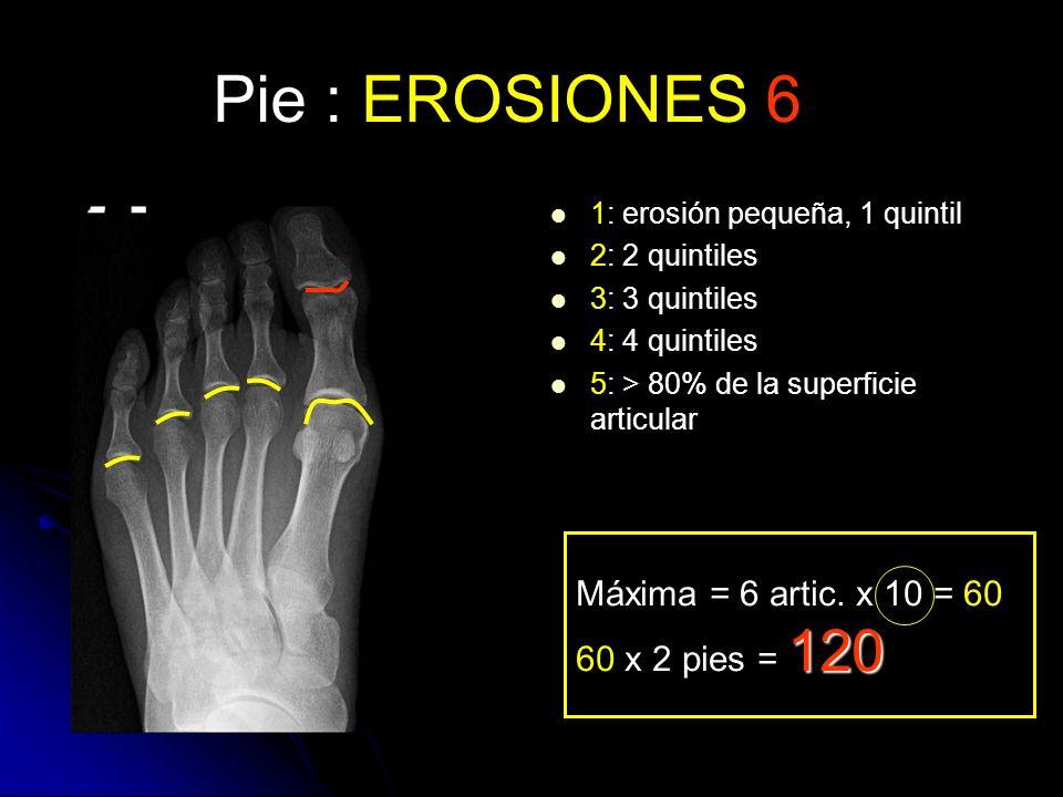 Pie : EROSIONES 6 Máxima = 6 artic. x 10 = 60 60 x 2 pies = 120