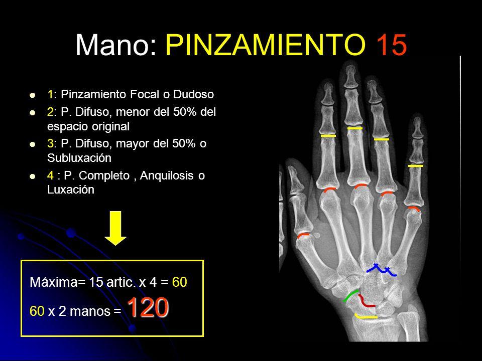 Mano: PINZAMIENTO 15 Máxima= 15 artic. x 4 = 60 60 x 2 manos = 120