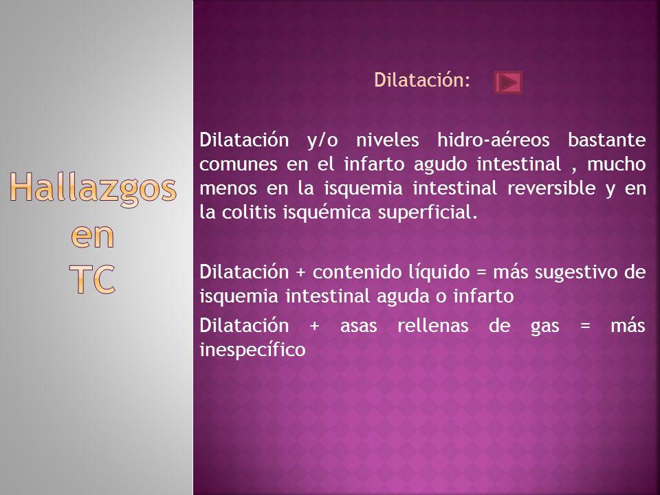 Hallazgos en TC Dilatación: