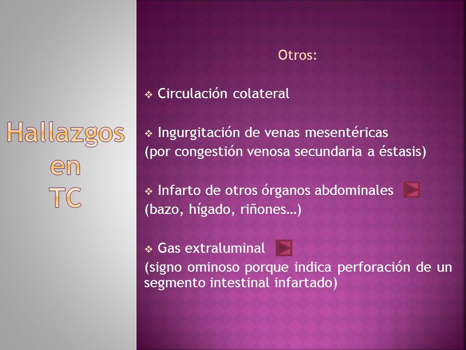 Hallazgos en TC Otros: Circulación colateral