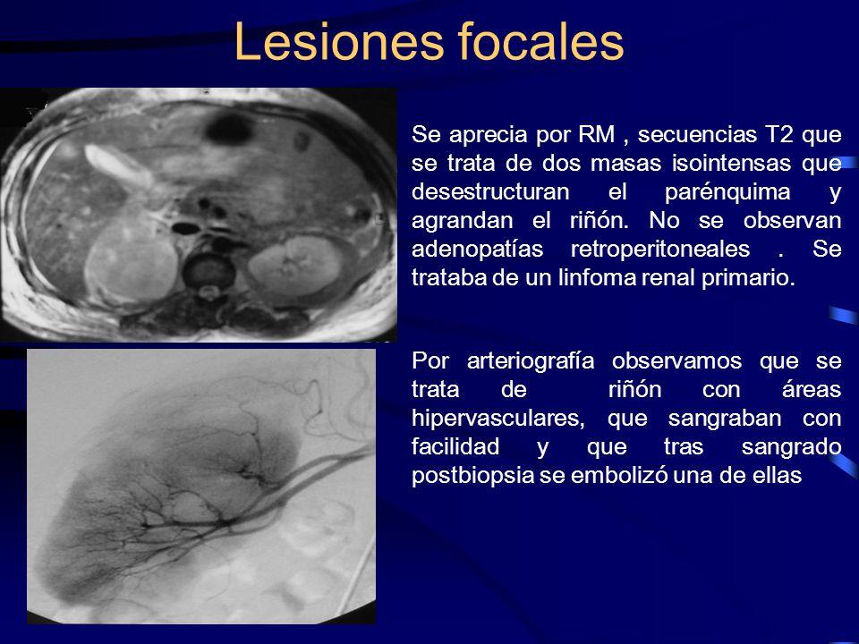 Lesiones focales