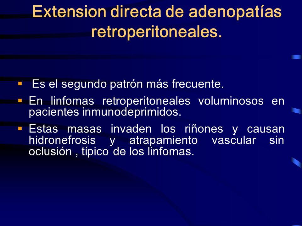 Extension directa de adenopatías retroperitoneales.