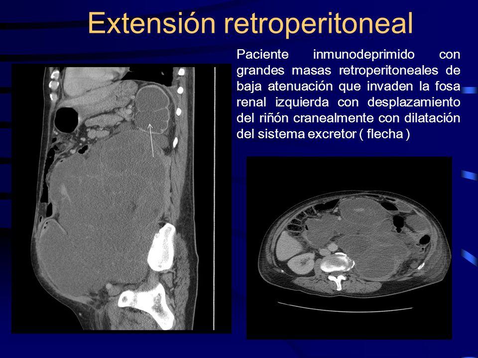 Extensión retroperitoneal