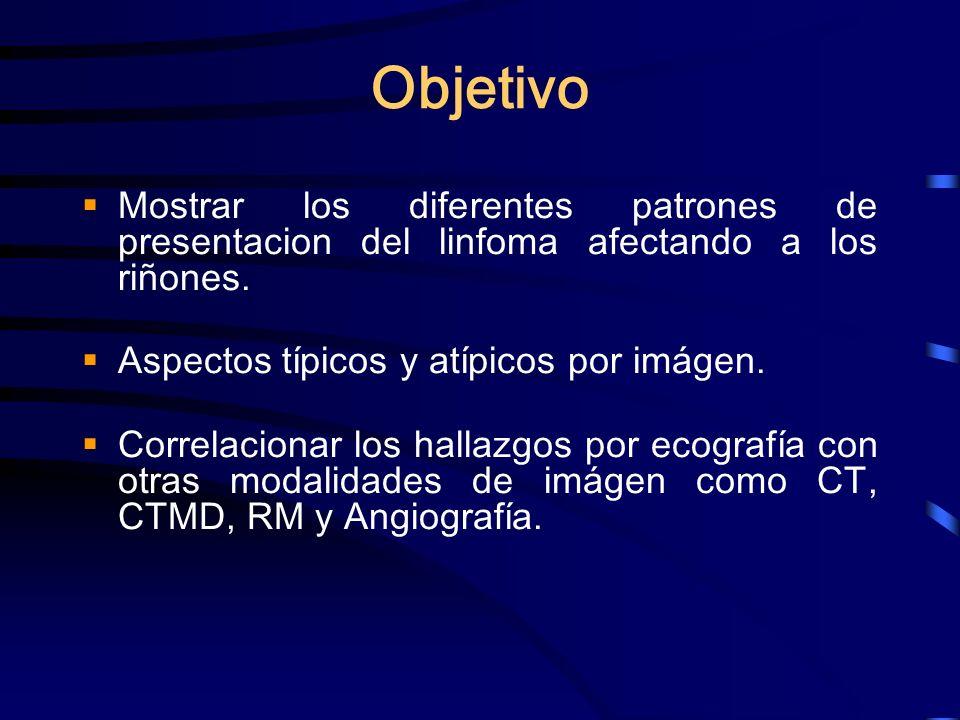 Objetivo Mostrar los diferentes patrones de presentacion del linfoma afectando a los riñones. Aspectos típicos y atípicos por imágen.
