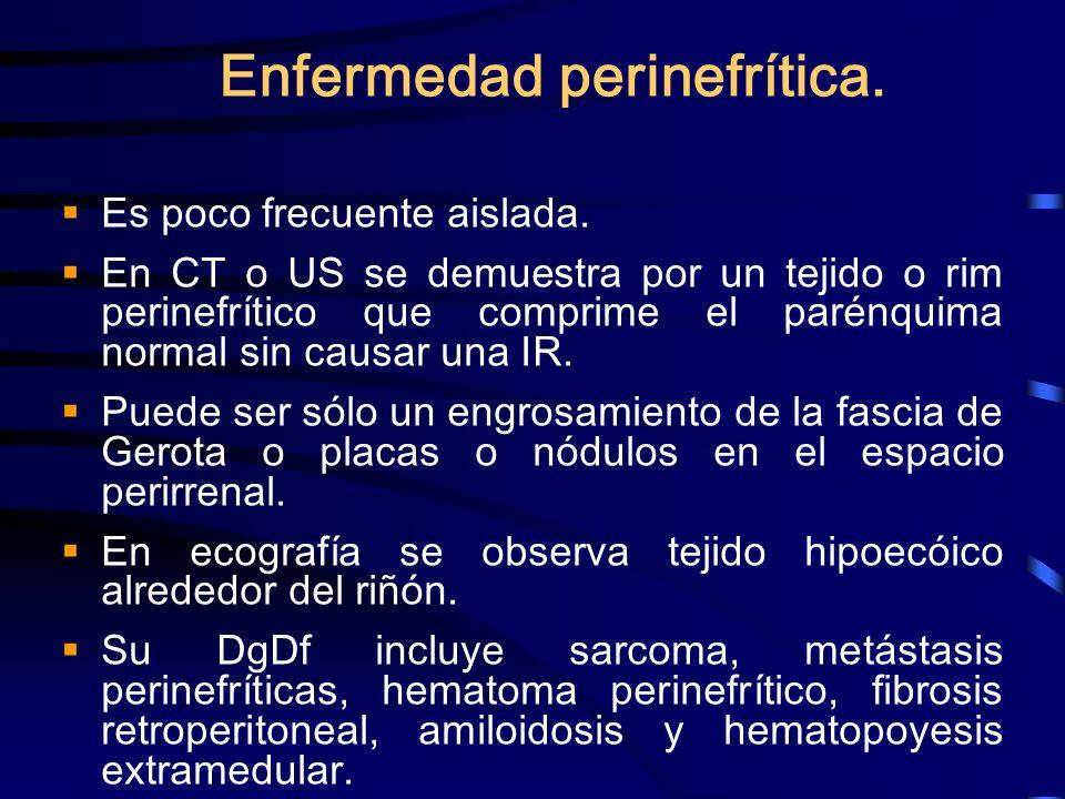 Enfermedad perinefrítica.