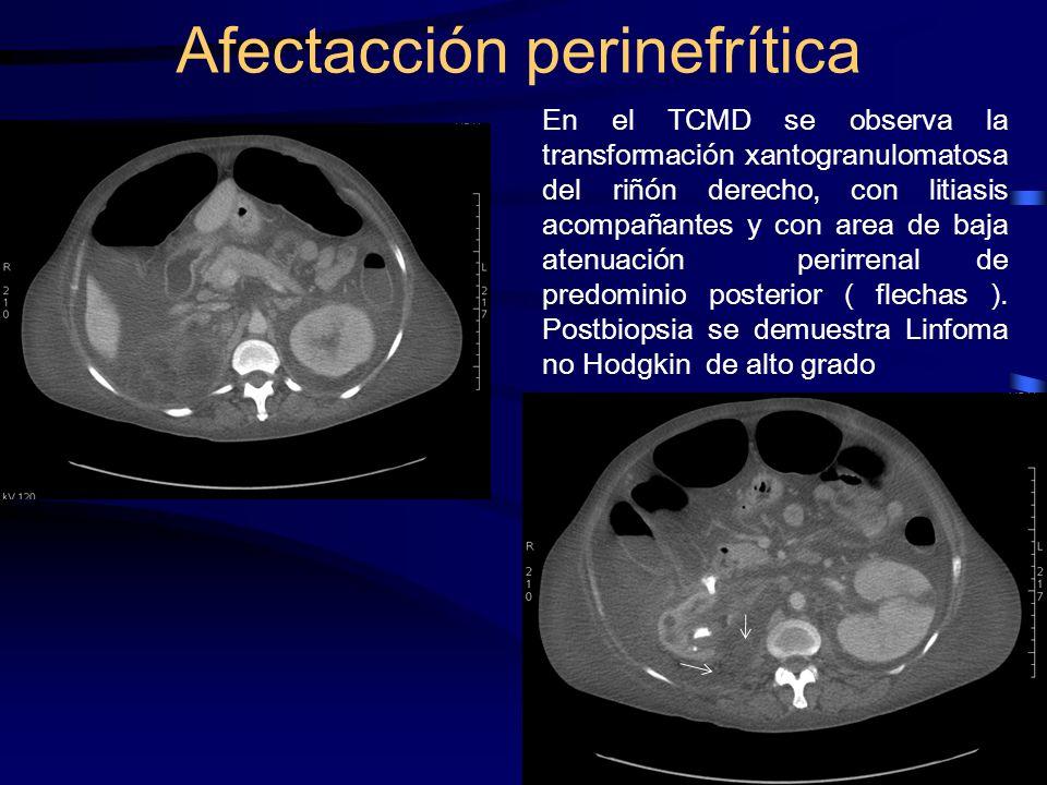 Afectacción perinefrítica