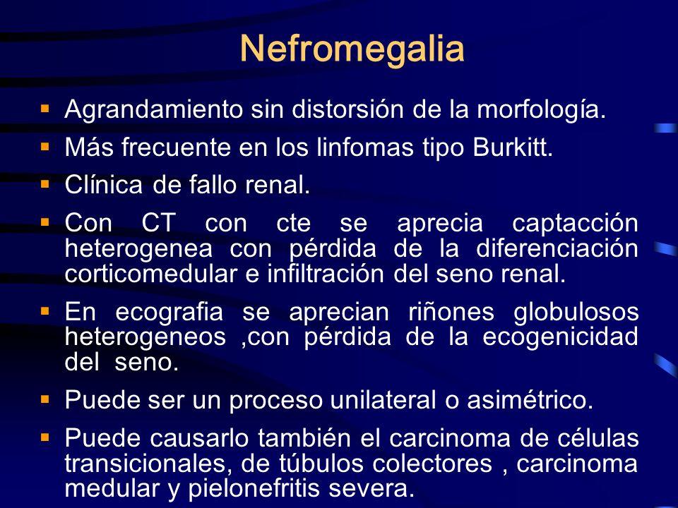Nefromegalia Agrandamiento sin distorsión de la morfología.
