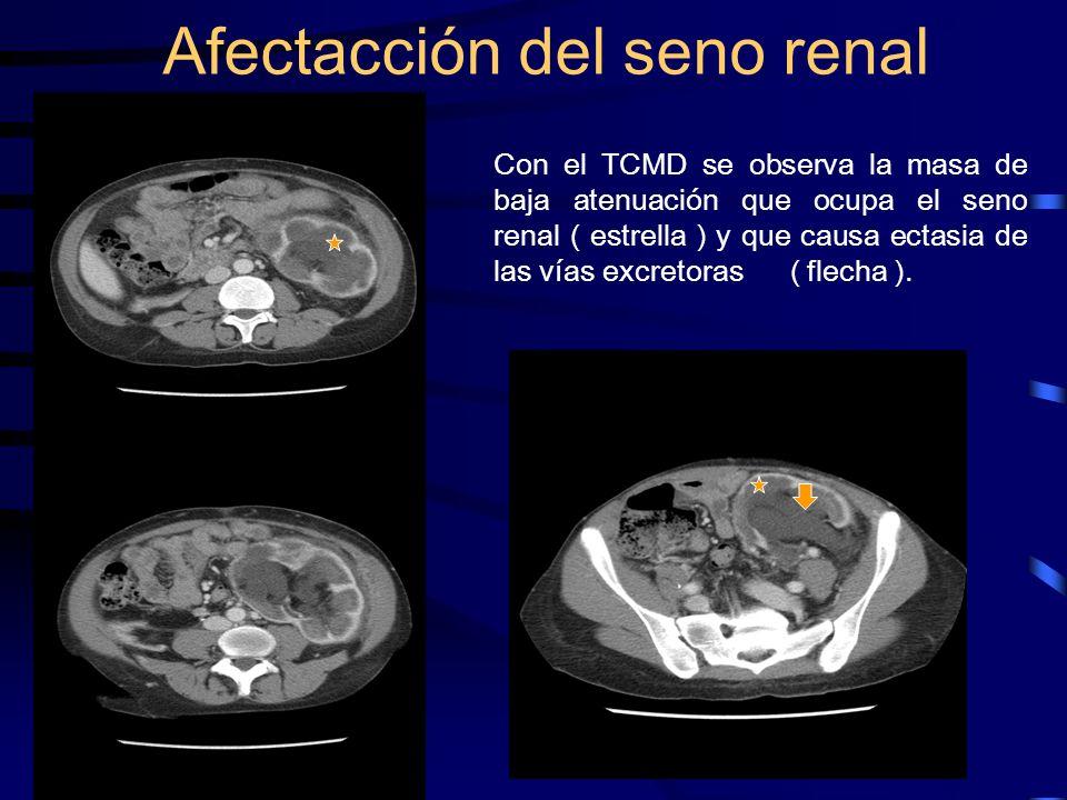 Afectacción del seno renal