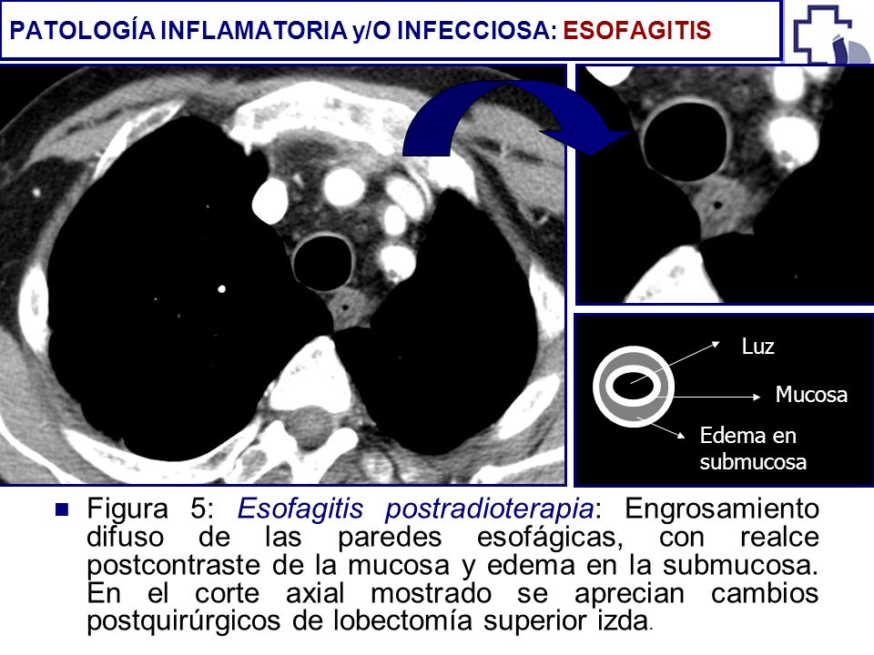 PATOLOGÍA INFLAMATORIA y/O INFECCIOSA: ESOFAGITIS
