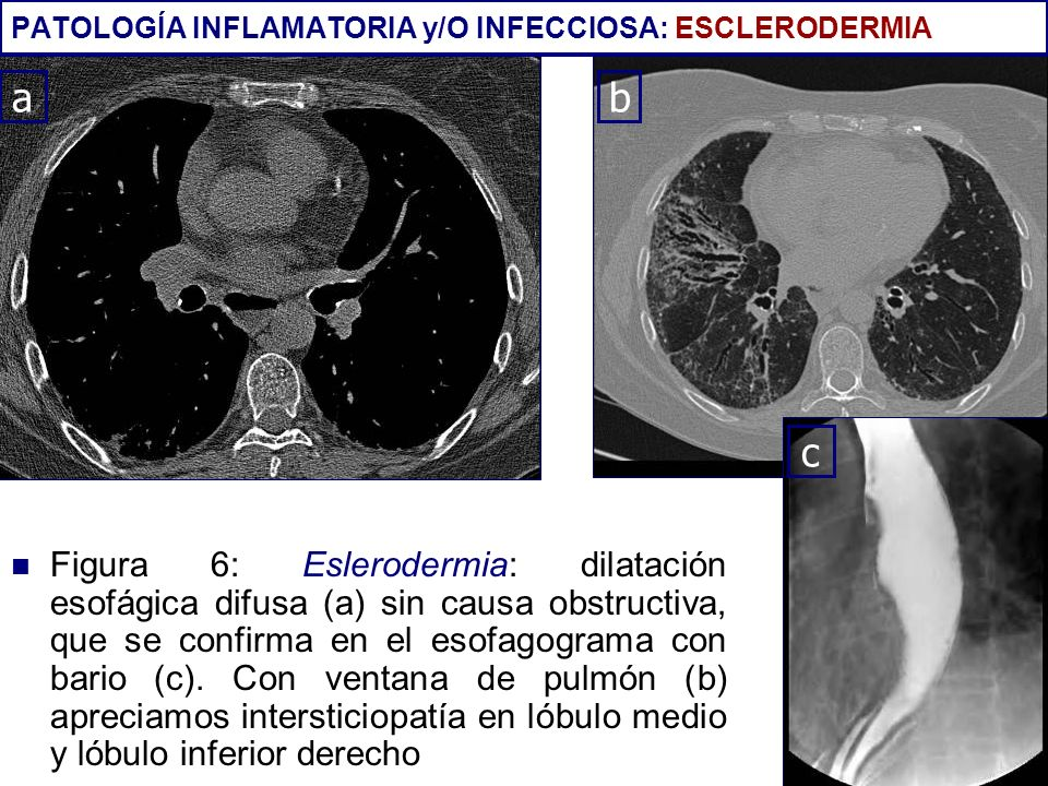 PATOLOGÍA INFLAMATORIA y/O INFECCIOSA: ESCLERODERMIA