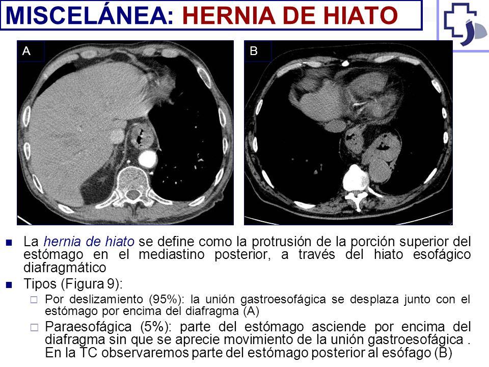 MISCELÁNEA: HERNIA DE HIATO
