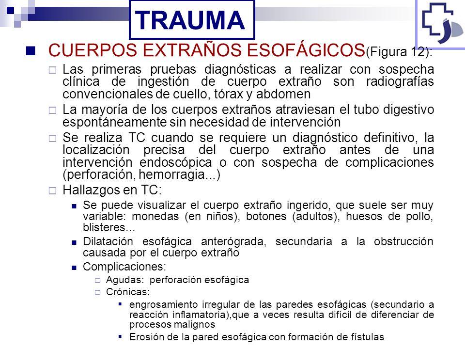 TRAUMA CUERPOS EXTRAÑOS ESOFÁGICOS(Figura 12):