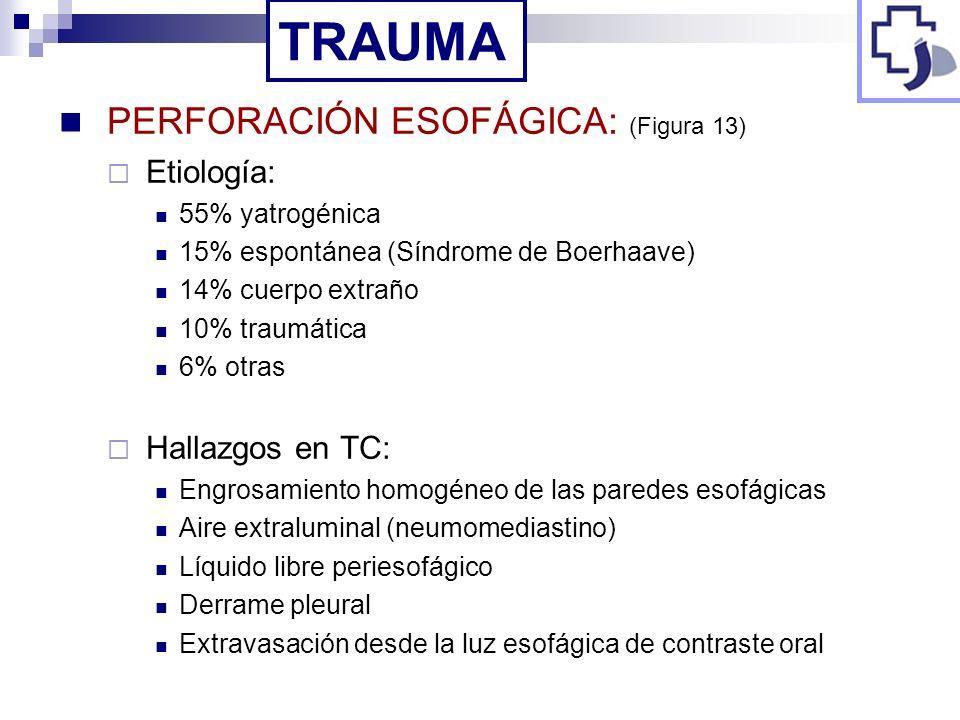 TRAUMA PERFORACIÓN ESOFÁGICA: (Figura 13) Etiología: Hallazgos en TC: