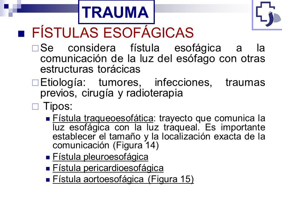 TRAUMA FÍSTULAS ESOFÁGICAS