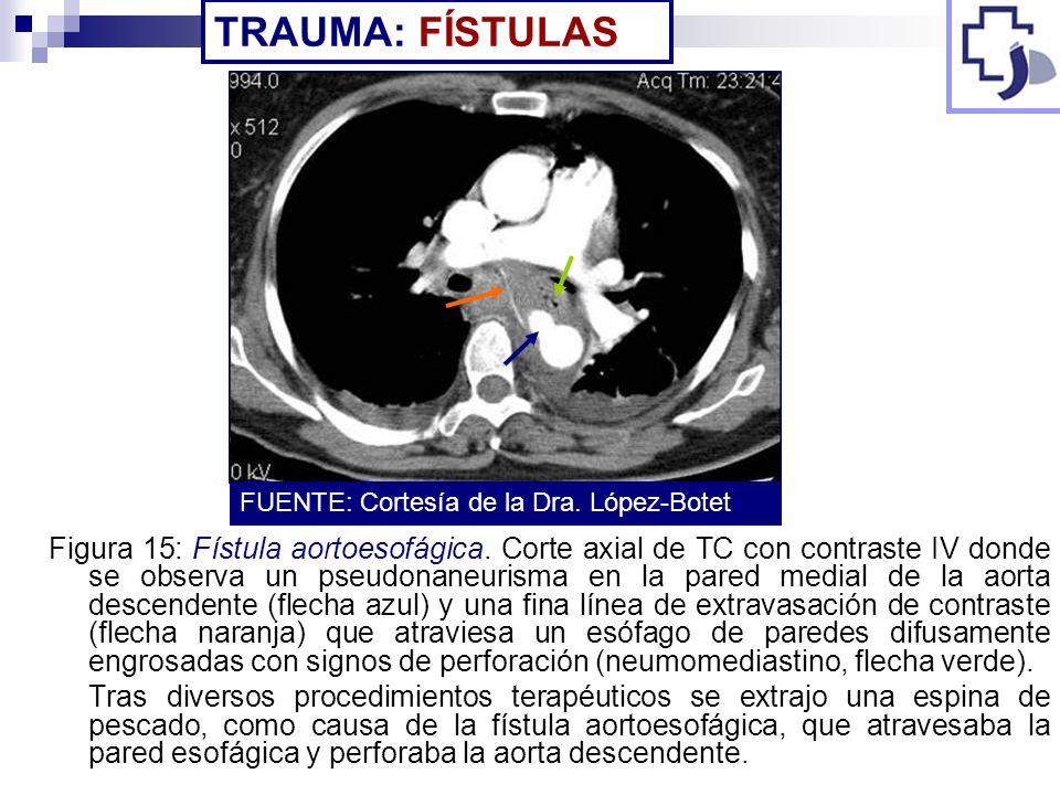TRAUMA: FÍSTULASFUENTE: Cortesía de la Dra. López-Botet.