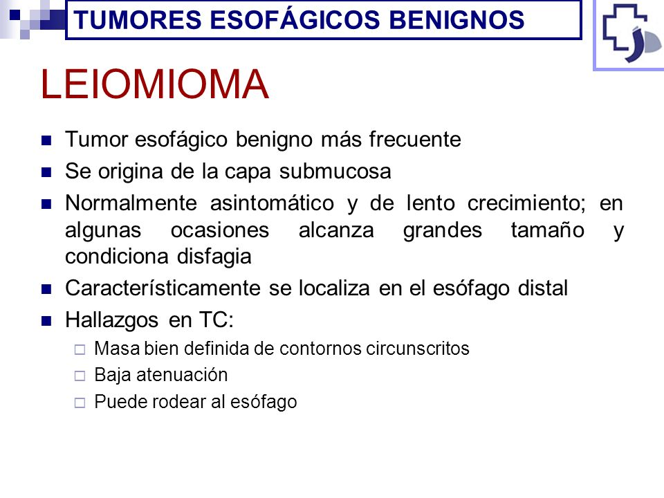 LEIOMIOMA TUMORES ESOFÁGICOS BENIGNOS