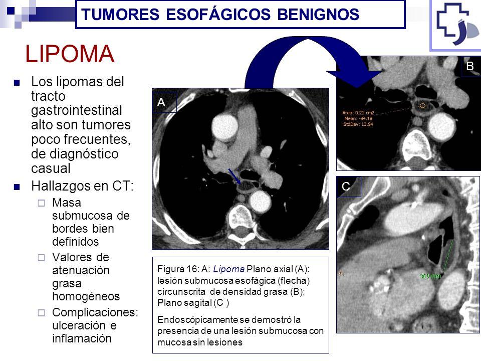 LIPOMA TUMORES ESOFÁGICOS BENIGNOS
