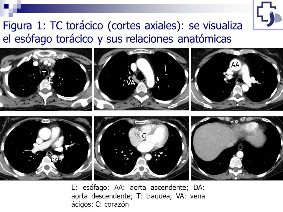Figura 1: TC torácico (cortes axiales): se visualiza el esófago torácico y sus relaciones anatómicas